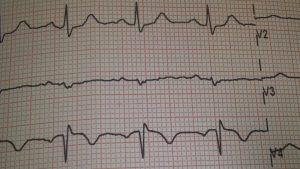 kardiogramm 1600x900